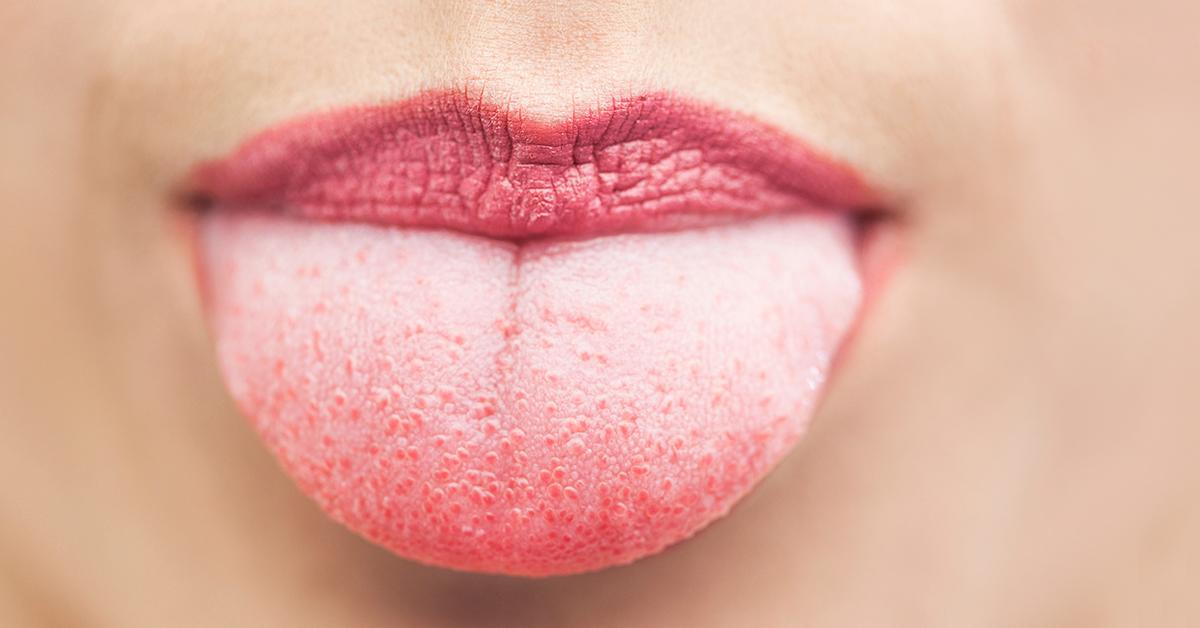 dca-blog_tongue-scraping-brushing