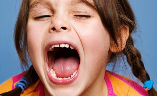 dca-blog_wisdom-teeth-girl